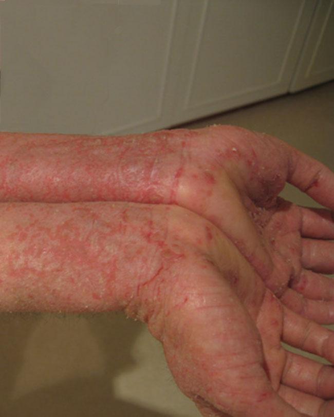 Problèmes de peau (eczéma, psoriasis, etc.)